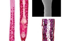 Morphology of the tapeworm Caryophyllaeus laticeps from freshwater bream (Abramis brama), China